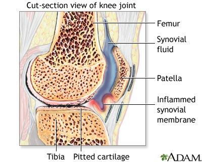 Sinovita purulentă a tratamentului articulațiilor genunchiului revizuiește