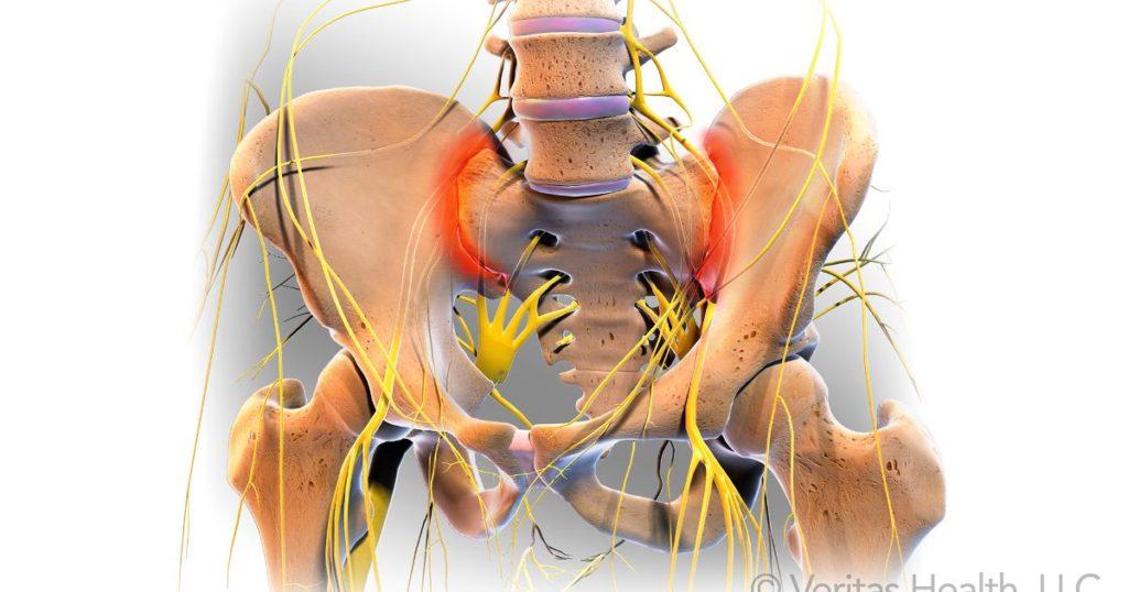 Articulatii sacroiliace
