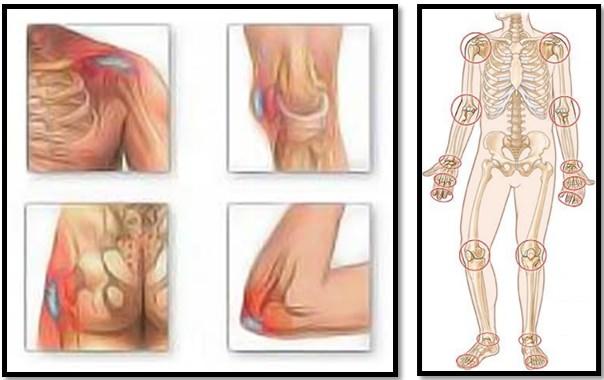 Încălzirea articulației umărului pentru artrită
