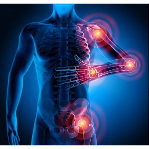 leziuni articulare cu artrita