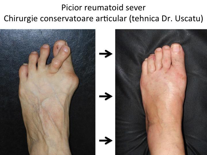 artroza reumatoidă a tratamentului piciorului)