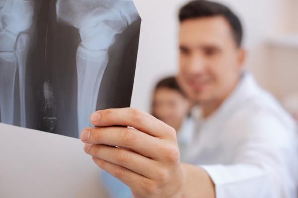 tratament pentru artroza articulațiilor arcului