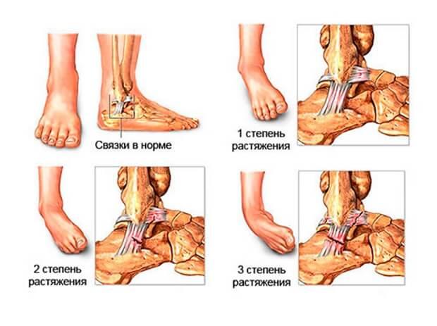 gradul de deteriorare a ligamentelor articulației gleznei