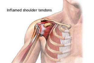 inflamația tendonului în articulația umărului