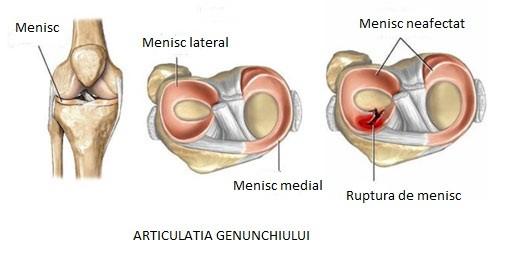 menisc de boala articulației genunchiului