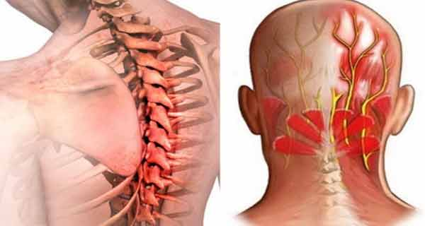 midcalm și dureri de umăr