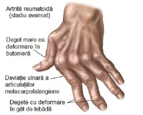 pentru artrita, mâinile sunt prescrise