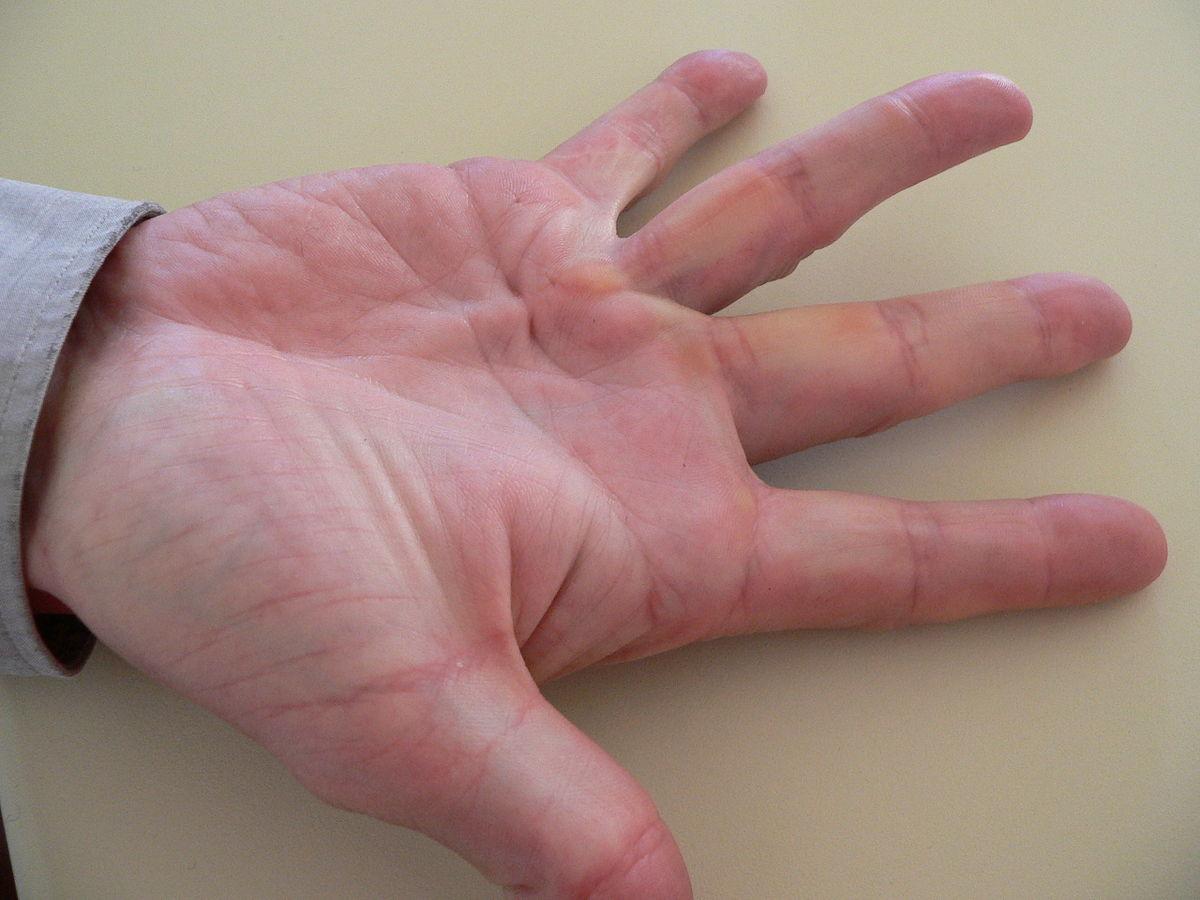почему сустав на руке длится