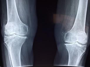 radiografie a genunchiului în artrita reumatoidă