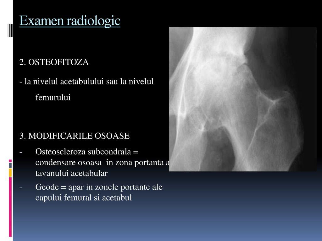 scleroza subcondrală a tratamentului articulațiilor)