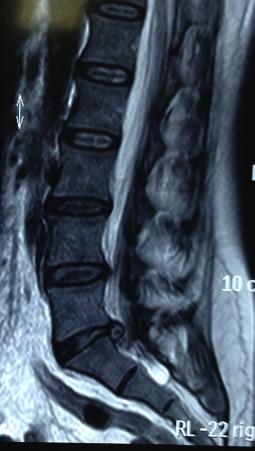 spinal și sala de tratament articular