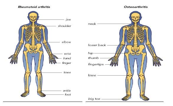 Artroscopia: durere mai putina si recuperare mai rapida