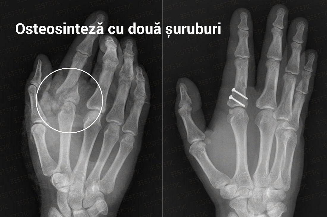 tratamentul articulațiilor degetelor după fracturi)
