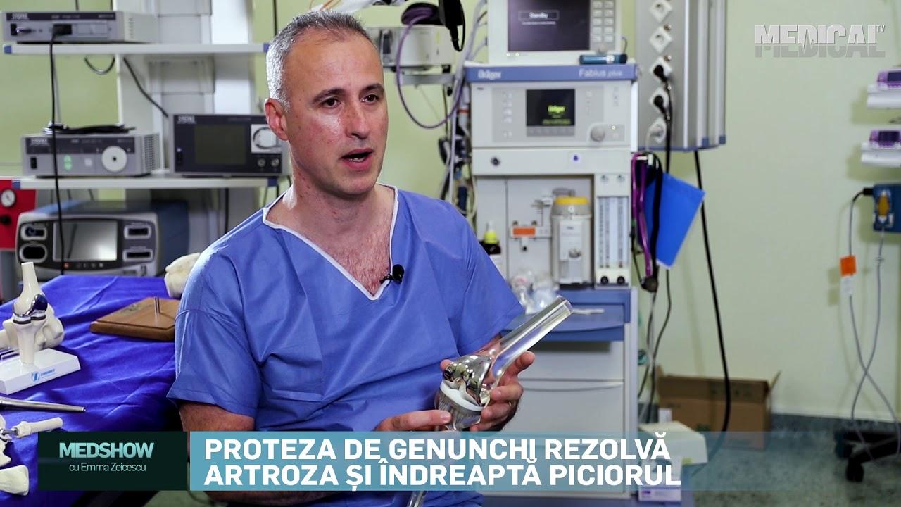tratamentul chirurgical al artrozei)