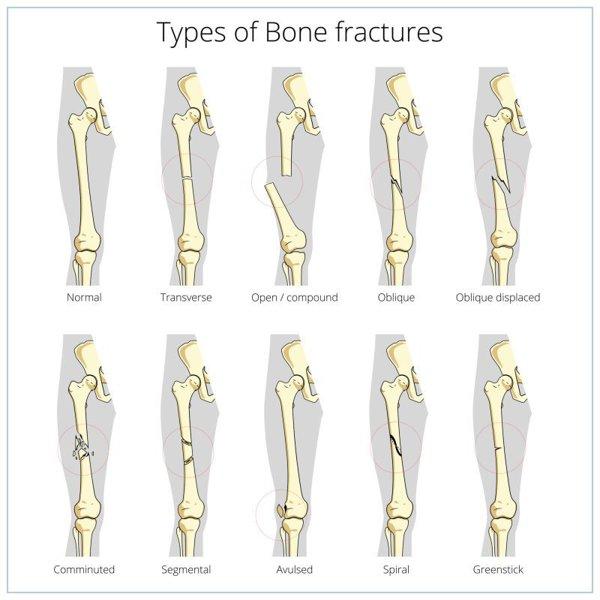 tratamentul fracturilor articulare