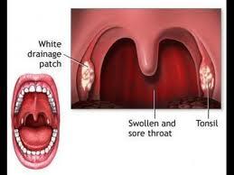 tratamentul infecției streptococice a articulațiilor)
