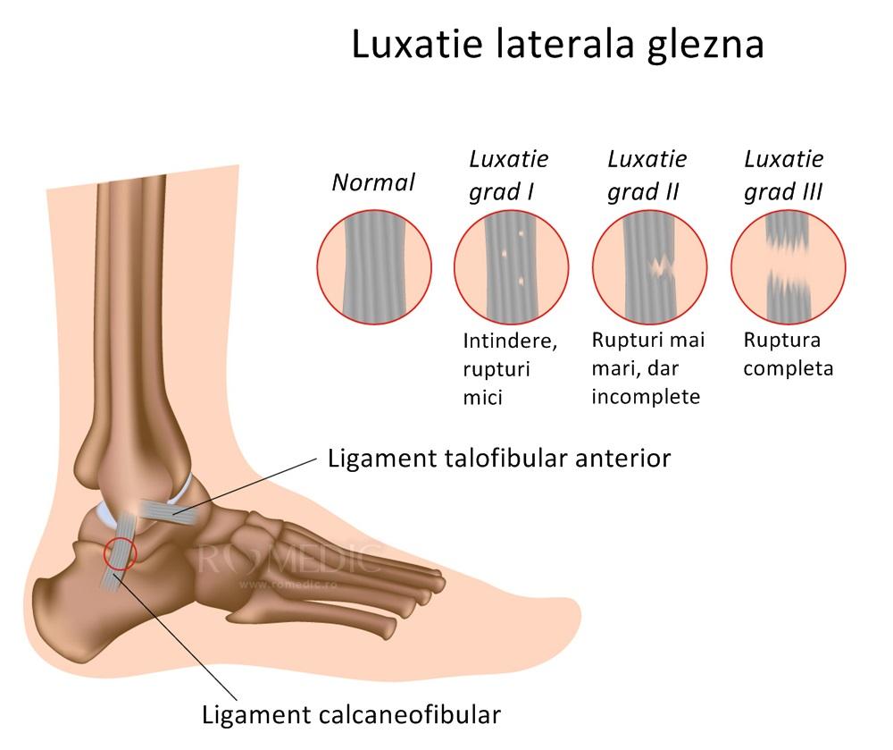 tratamentul subluxației și artrozei articulației gleznei
